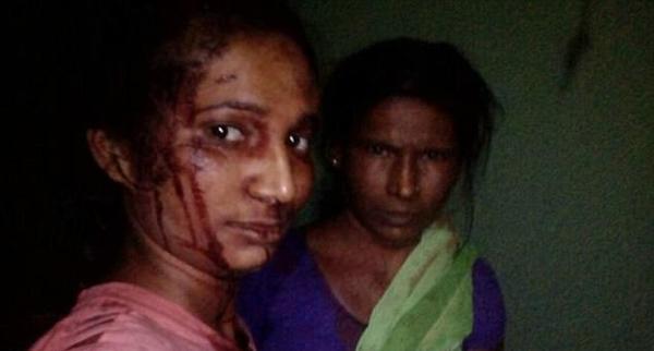 印度女子为救山羊勇斗猛虎侥幸捡回一命