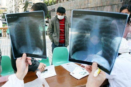 最新呼吸病流行状况研究显示:我国慢阻肺患者近1亿