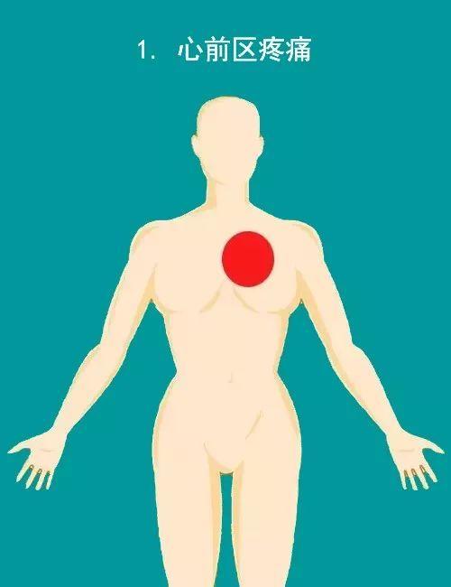 医生告诉你:急性心梗发作的10个常见疼痛部位