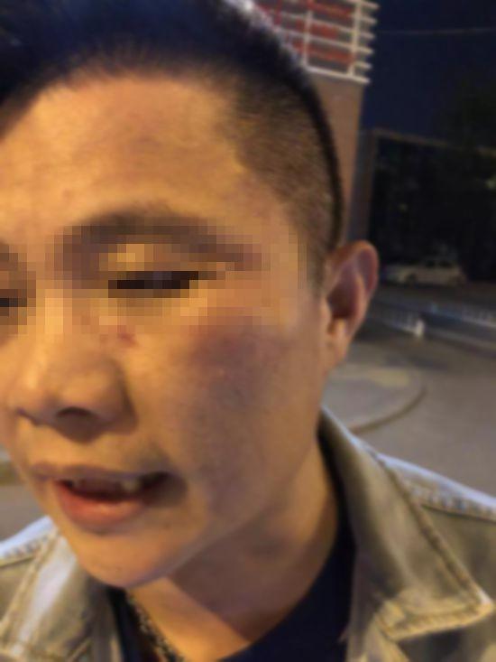 滴滴被打乘客再发微博称:将公布被打视频