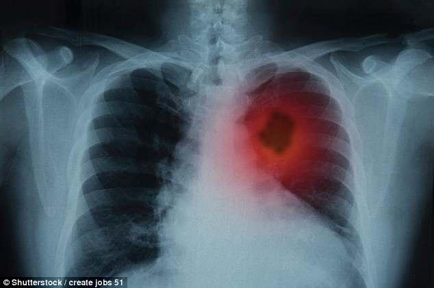 你得肺癌的几率是多少?网络计算器告诉你