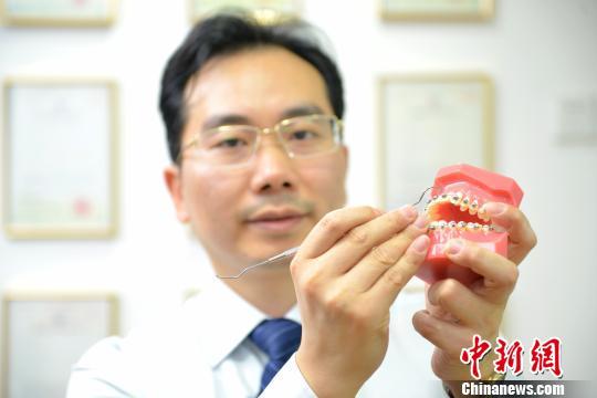 箍牙不再担心划伤 广州医生研发球面牙齿矫正托槽