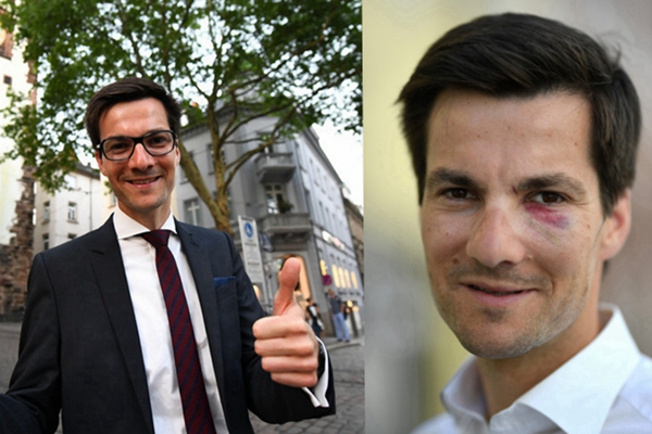 德国弗莱堡新市长庆祝当选被揍 鼻青脸肿