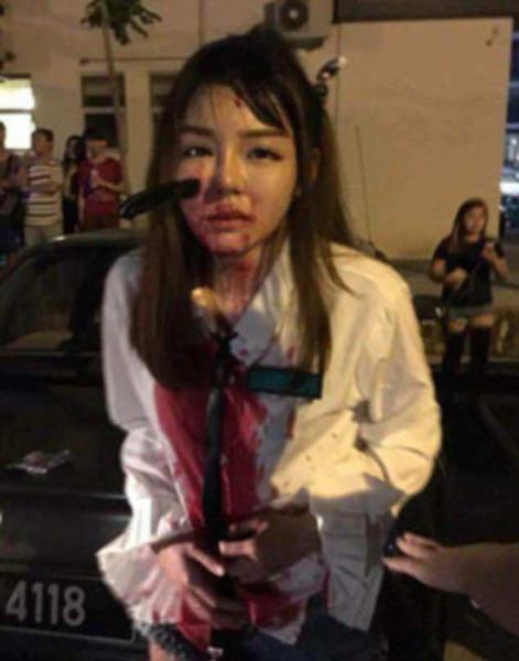 凶残!马来西亚女子反抗抢劫右脸被劫匪插进一把刀