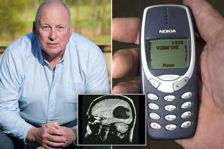 男子因长期使用诺基亚手机患脑瘤 索赔858万元