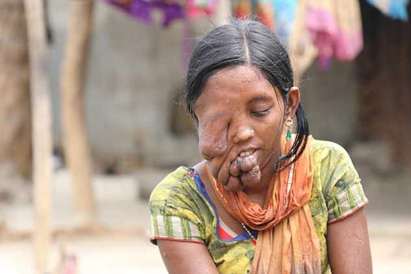 印花季少女患神经纤维瘤面部毁容 被父亲残忍抛弃