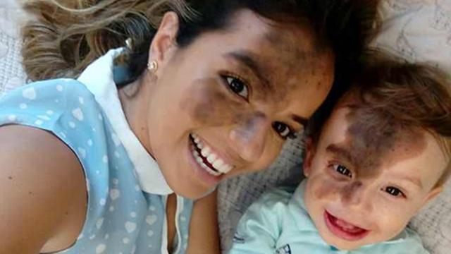 巴西美女妈妈将脸故意涂黑 复制儿子脸上胎记