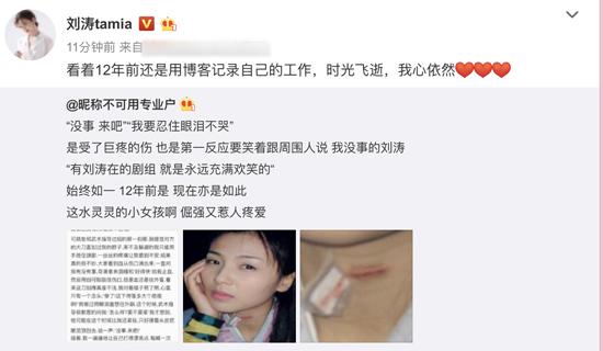 """刘涛分享博客旧文 惊险动作戏留""""割喉""""旧伤"""