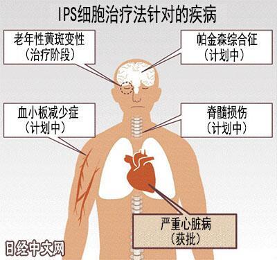 即将进入疑难重病领域 日本走近iPS再生医疗