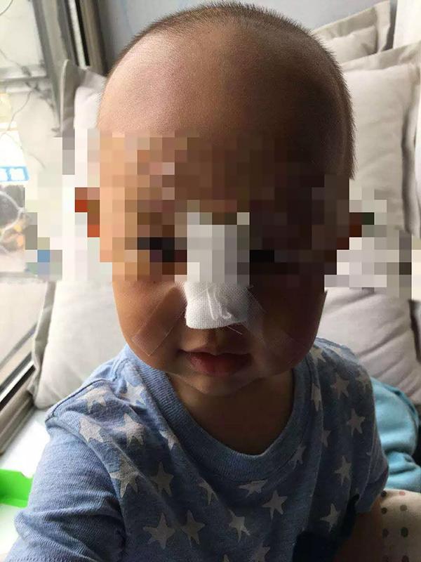 奔驰外籍员工儿子玩无人机砸伤幼童 半个月未道歉