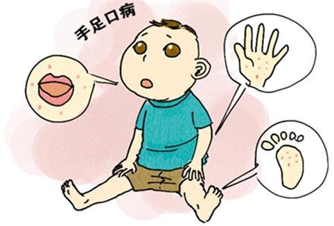 玉屏风颗粒对付手足口病:早期预防 避免重症