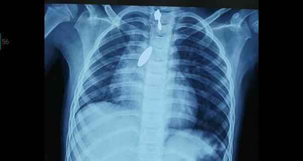 印度一女孩误吞磁铁 医生用强力大磁铁将其吸出