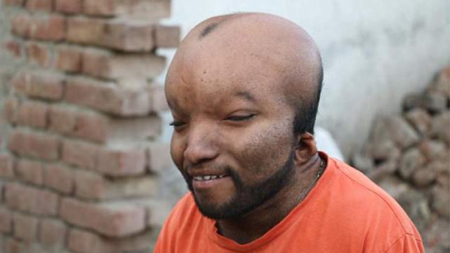 """印男子患怪病脑袋胀大眼睛深陷被叫""""外星人"""""""