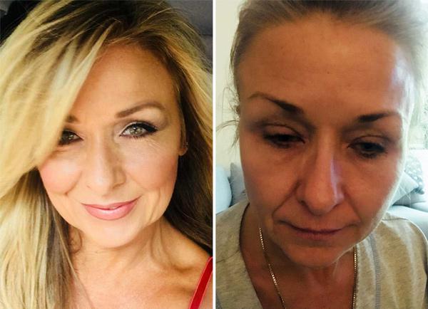 妇女化妆25年从不卸妆 毒素堆积险致双目失明