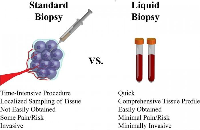 """新的验血方式可能是""""癌症研究的圣杯"""""""