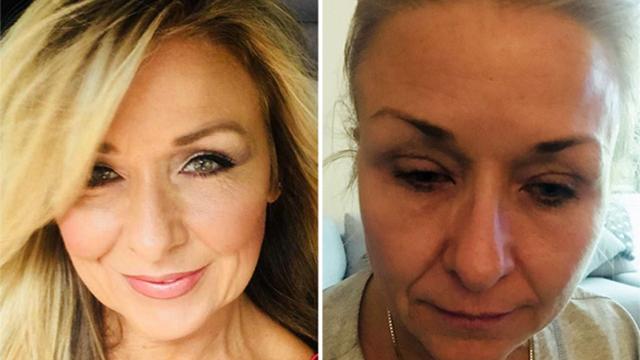 女子化妆25年从不卸妆 毒素堆积险致双目失明