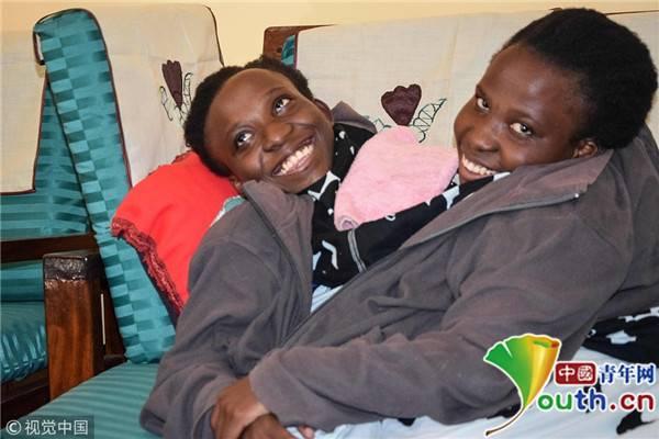世界知名连体婴姐妹因呼吸道并发症去世 年仅21岁