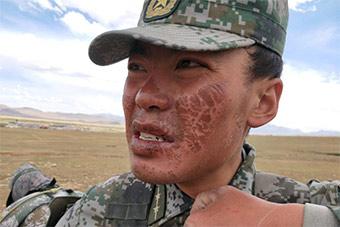 为参加国际比赛西藏某部刻苦训练 士兵脸被晒伤