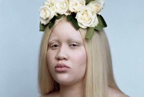 黑人女孩患白化病 逆袭成模特展现别样风采