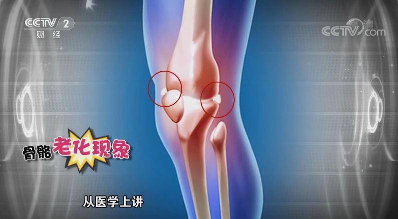 骨质增生患者不能补钙?医生:完全可以