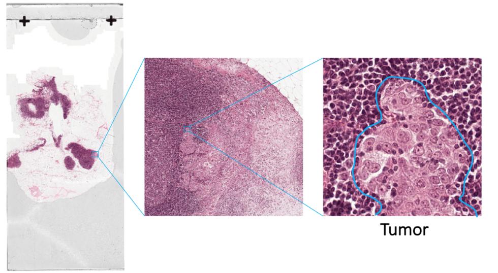 AI肿瘤识别准确率超医生 百度宣布开源识别AI算法