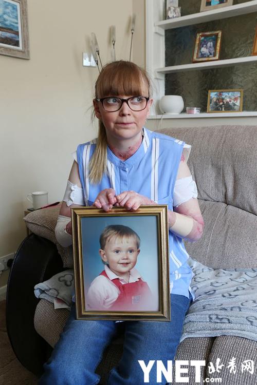 27岁英女子患罕见病 皮肤薄如蝶翼没有指甲