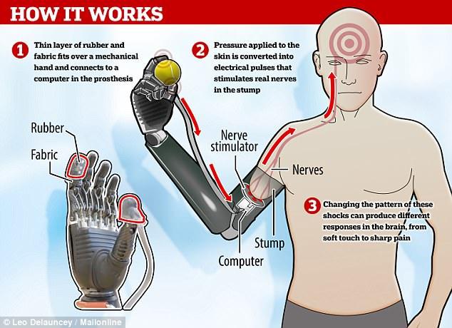 假体越来越逼真:最新电子皮肤能传递真实痛感