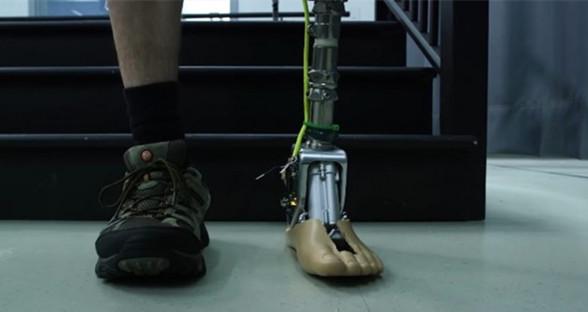 更智能!假肢踝关节可让穿戴者选择不同鞋型