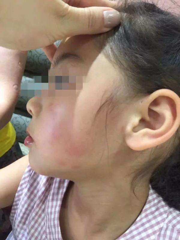 4岁女孩被女子凶狠掌掴看得揪心 打人者已被行拘