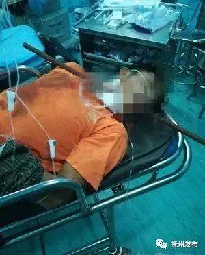 男子4米高脚手架上摔落遭钢筋穿喉 口腔内大量出血