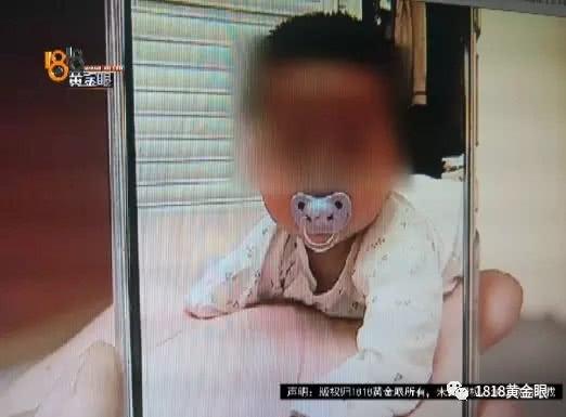 男婴右臂缺失家属质疑产前检查 院方称是超声没扫到