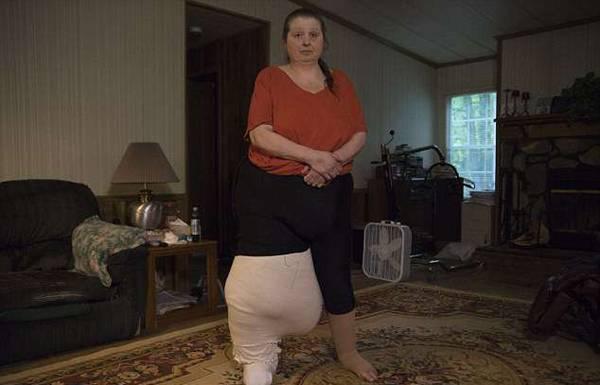 世界腿最粗女人长期受淋巴水肿煎熬 治疗喜获成效