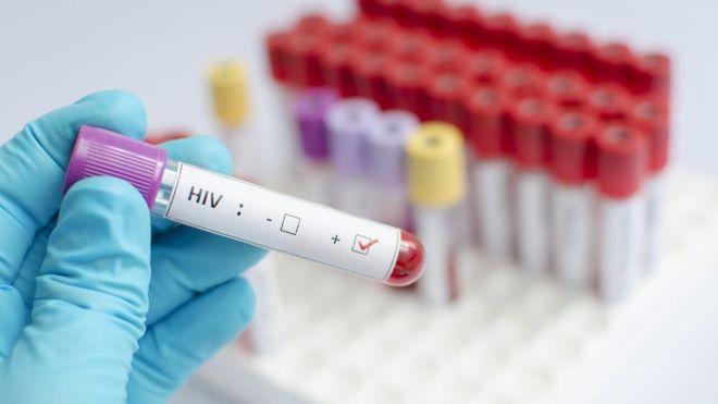 新型HIV疫苗人体试验效果可喜 将接受进一步测试