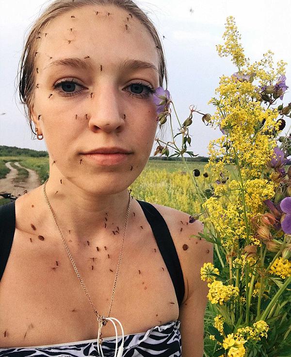 俄罗斯网红自拍满脸蚊子照展现夏季煎熬