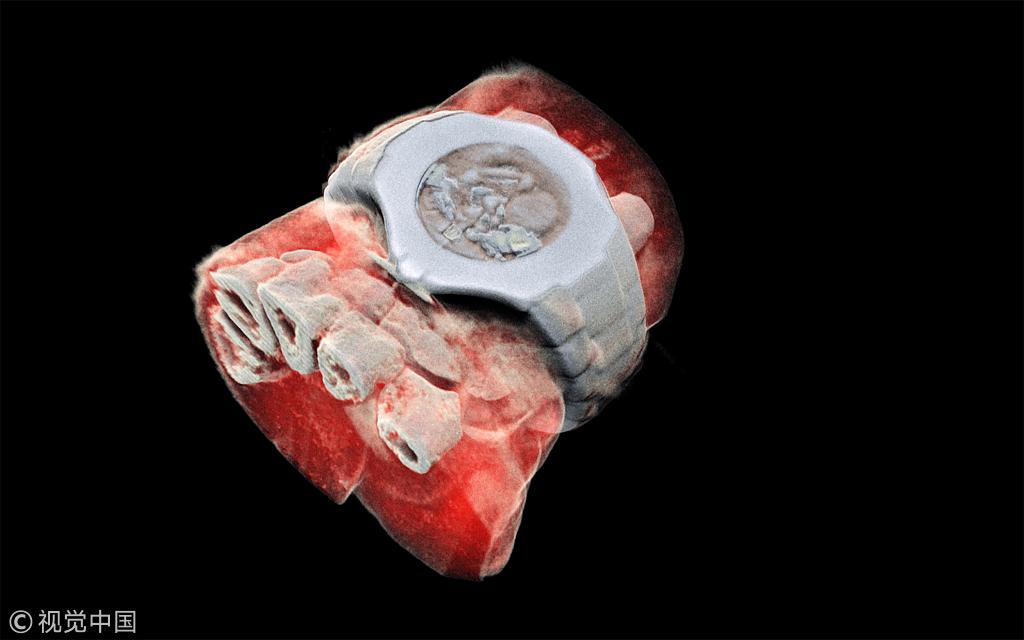 第一张人体3D彩色X光片曝光 将引发外科手术革命