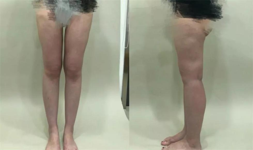 23岁女子花1万5做腿部吸脂术 半年后腿上全是坑