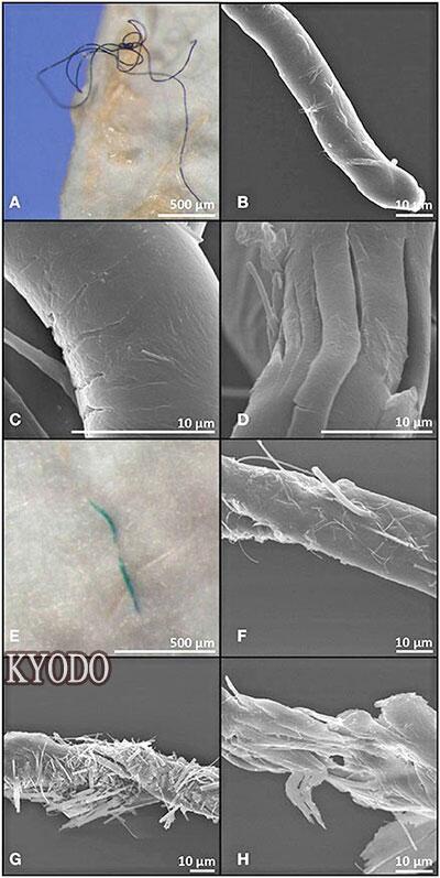 爱尔兰研究团队发现大西洋73%深海鱼体内有塑料微粒