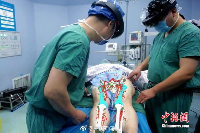堪比大片!医生带VR眼镜做手术 血管神经清晰显露