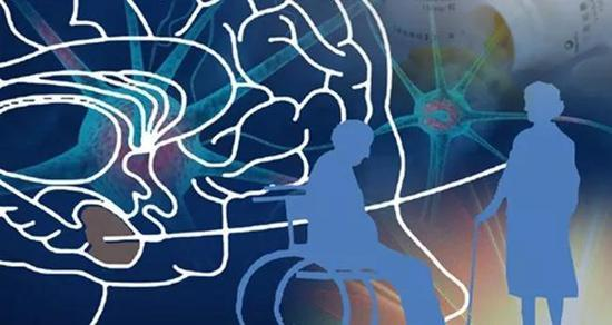 中科院:国产阿尔茨海默症新药完成三期临床试验