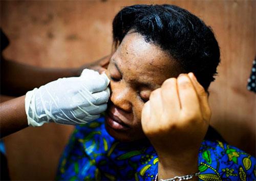 """非洲女孩不纹身不整容,偏爱2美元的致命""""洗白""""手术"""