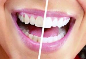注意这几点能避免一口大黄牙