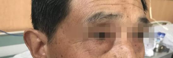 老人忽然眼袋变明显 去医院一查得出震惊诊断
