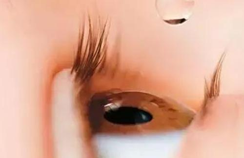 注意!眼药水直接滴眼球上毁眼睛!