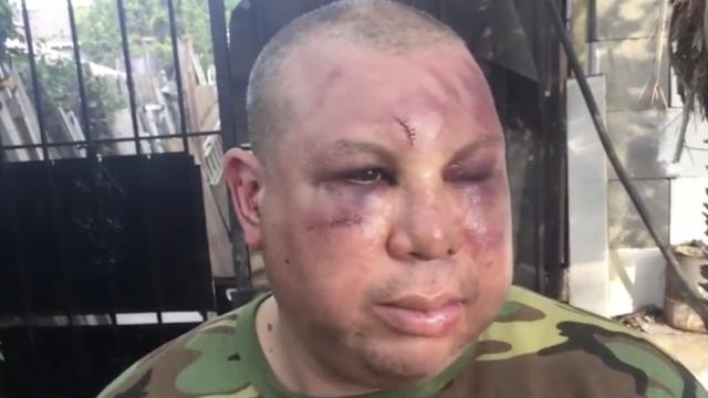 """殴打并斥拉丁裔男子是""""假美国人"""" 美国两警察被捕"""