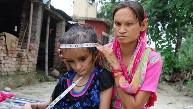 印度一少女跌了一跤导致脑袋长成西瓜一样大