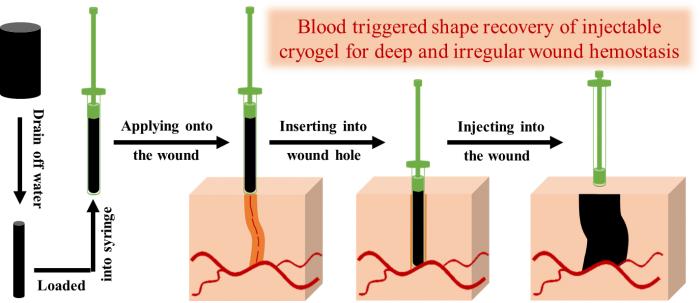 西安交大研发出针对不可按压止血的快速止血材料