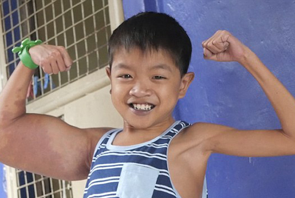 """菲律宾11岁男孩因患怪病变成""""大力水手"""""""