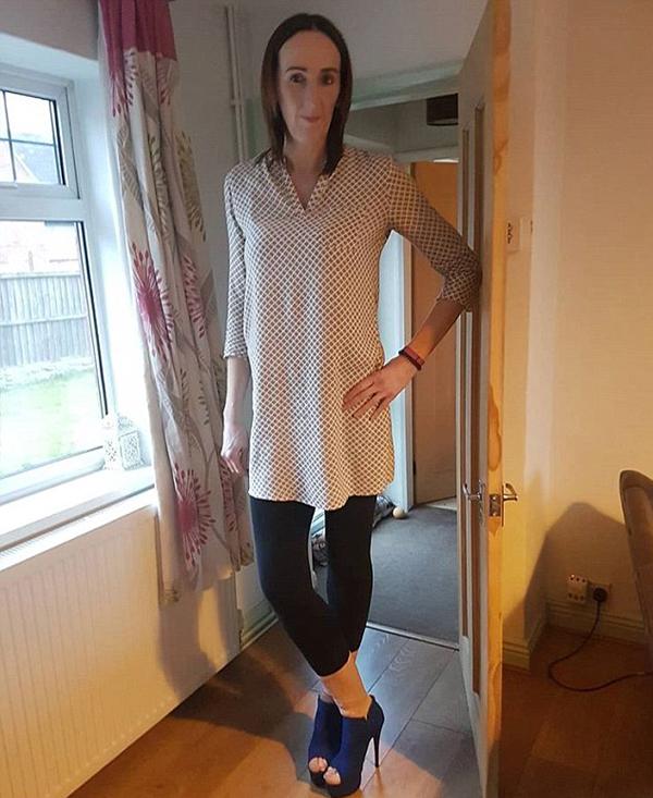 英女子身高1米93被嘲像男人 终接纳身体活出自我