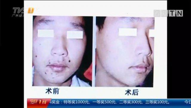 深圳 16 岁学生花 2000 多元点痣后 脸上出现糜烂