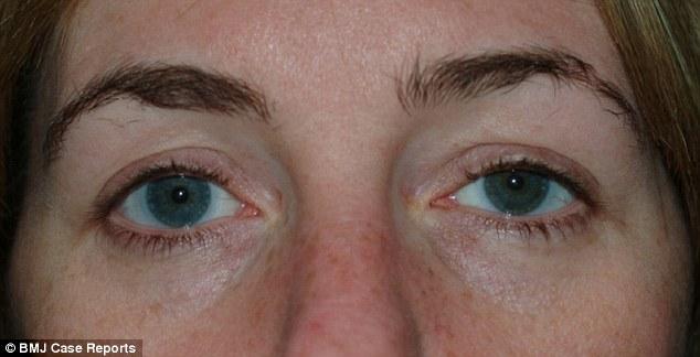 英女子眼睛内竟发现28年前留存隐形眼镜